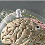 BrainGate: solución a la parálisis